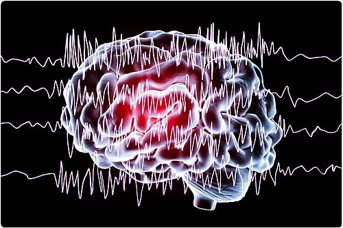Разряды идущие от нейронов - Кордия