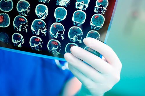 Опухоли на головном мозге - Кордиямед