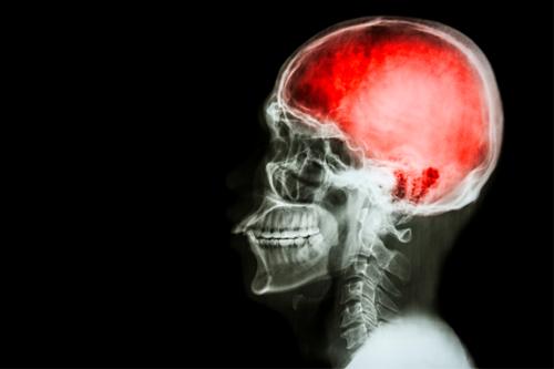 Травмы головы - Кордия
